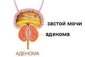 Аденома простати: як повністю вилікувати хворобу і повернути втрачене здоров`я