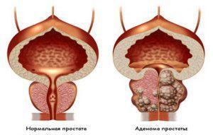 Аденома простати - лікування народними засобами