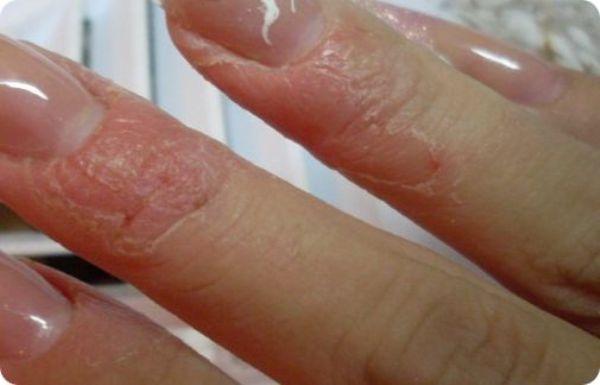 Таблетки від алергії зодак