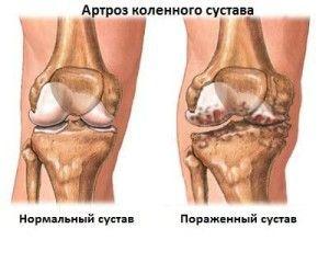 Артроз колінного суглоба. Клініка, діагностика, лікування.