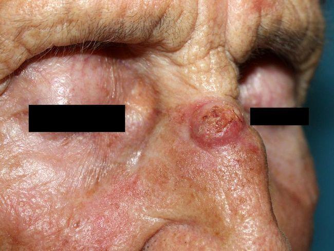 Базаліома шкіри (базально-клітинний рак) - прогноз, рецидиви, лікування