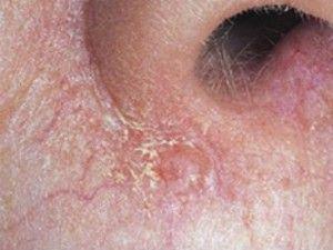 Базаліома особи: як виглядає на фото, схожі захворювання шкіри.
