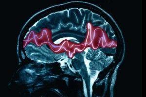 Хвороба епілепсія