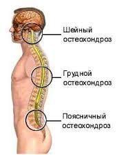 Знеболюючі уколи при остеохондрозі