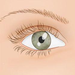 Що робити якщо смикається очей? Методики лікування блефароспазму.
