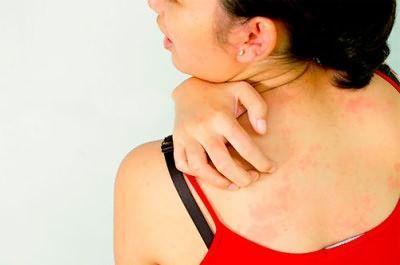 Таблетки від алергії на шкірі
