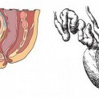 Що приймати при простатиті: медичні ліки або народні засоби