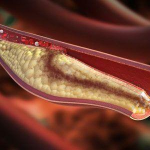 Що таке тромбоемболія ніг?