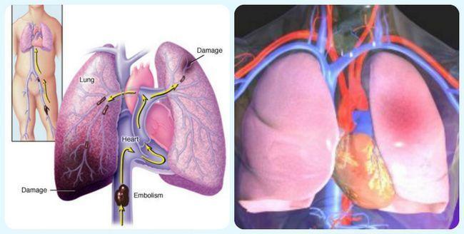 Що таке тромбоемболія?