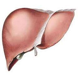 Цироз печінки: які ознаки і як лікувати?