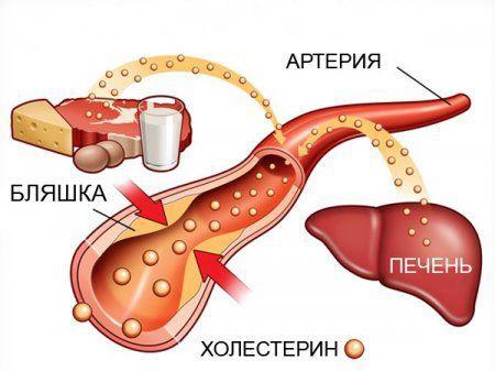 Діагностика і методи лікування цукрового діабету 2 типу