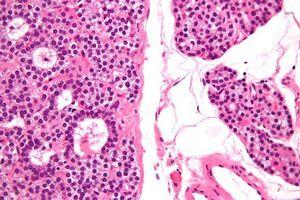 Діагностика на утримання онкомаркера передміхурової залози в крові