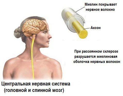 Діагностика розсіяного склерозу