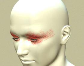 Головний біль у скронях і очах