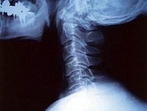 Грижа шийного відділу хребта: лікування без операції, народні засоби