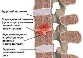 Грижа шморля хребта - як виявити хворобу без симптомів?
