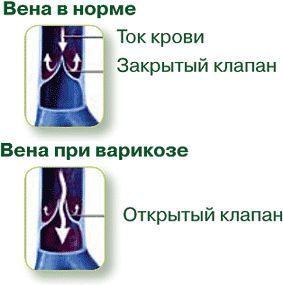 Хронічна венозна недостатність у вагітних - причини і лікування.