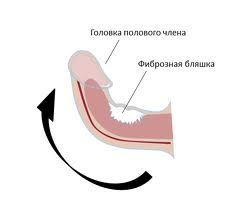 Викривлення статевого члена - причини і лікування