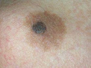 На фото себорейний кератоз у вигляді коричневої плями навколо родимки.