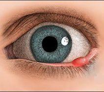 Ячмінь на оці: причини і як правильно лікувати (кошти)