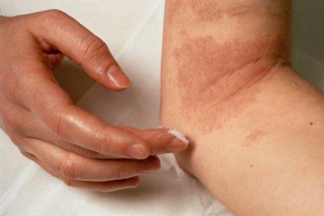Еритразма: лікування мазями