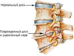 як лікувати остеохондроз шийного хребта