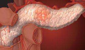 Як лікувати панкреатит народними засобами