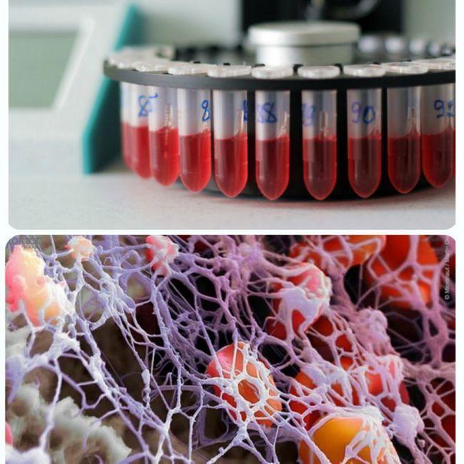 Як позначаються в загальному аналізі крові тромбоцити