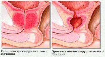 До складу мікроклізми при простатиті можуть входити лікарські препарати
