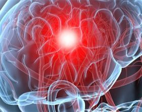 Як поліпшити кровообіг головного мозку: препарати і корисні поради