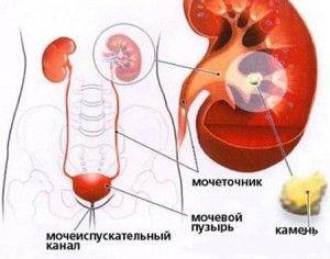 Як виглядають камені в нирках після їх виходу з сечею - фото і опис