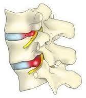Які операції проводяться при грижі поперекового відділу хребта?