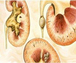 Симптоми, супутні нирковим захворюванням