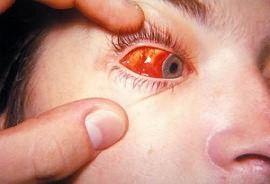 Алергічний кон`юнктивіт при вагітності