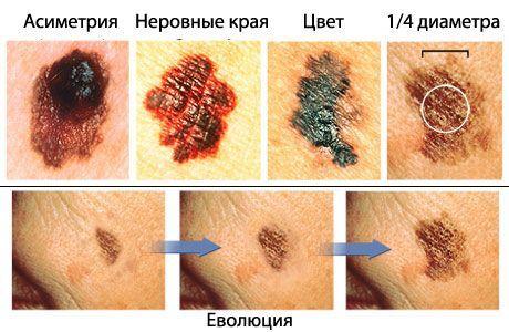 Коли родимки стають небезпечними: ознаки меланоми