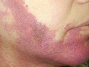Червона родимка на обличчі - винної плями.