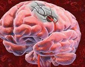 Внутрішньомозковий крововилив: причини і діагностика