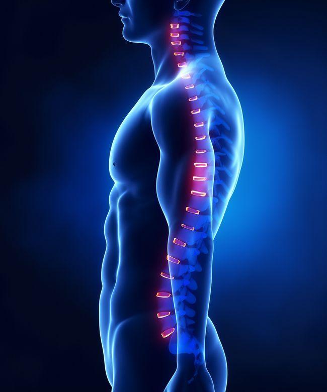 Лікувальні вправи при грижі в грудному відділі хребта