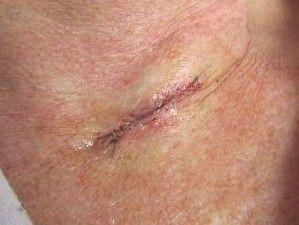 Лікування раку шкіри