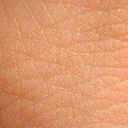 Лікування стрептодермії у дорослих