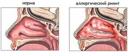 Ліки від алергічного риніту