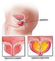 Лікарські препарати для проведення профілактики простатиту у чоловіків