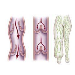 Лімфостаз нижніх кінцівок
