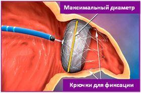 Миготлива аритмія - життя без ліків