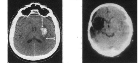 Методи візуалізації мозкових структур