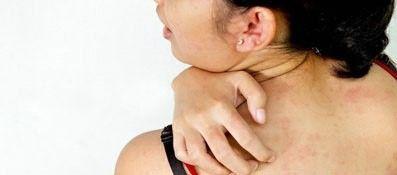Зняти свербіж при алергії народними засобами