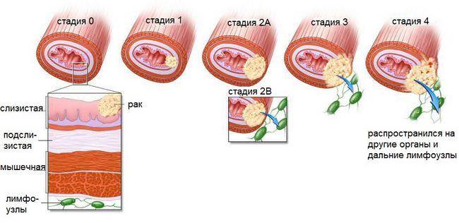 Народні засоби при раку стравоходу