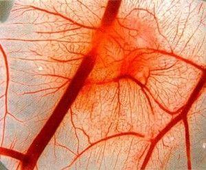 Нейроциркуляторна дистонія. Діагностика та лікування