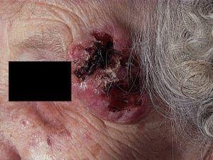 Опромінення базаліоми (променева терапія, променеве лікування).
