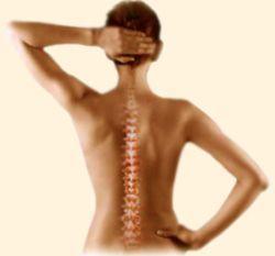 Остеохондроз хребта. Етіопатогенез, клініка, діагностика і лікування.